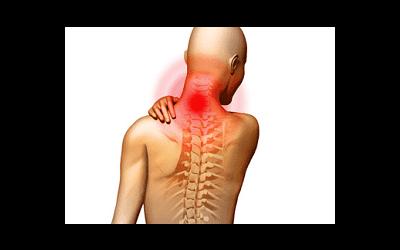 Bolečine v vratnem delu hrbtenice